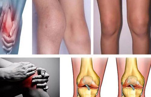 Остеоартроз причины болезни