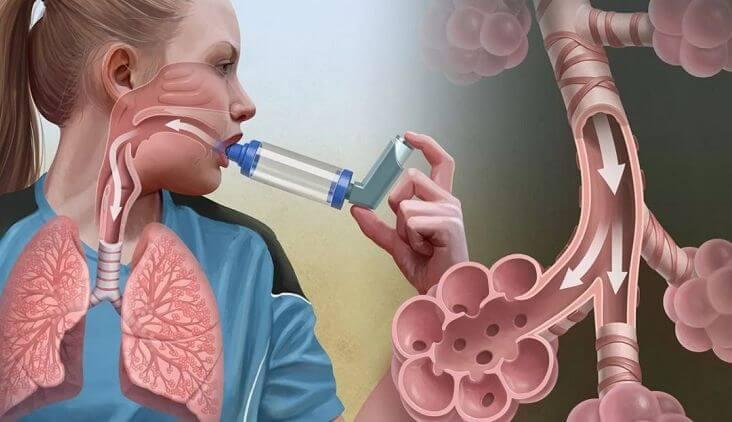Астма (бронхиальная астма)