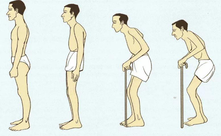 Болезнь Бехтерева. Причины. Симптомы. Диагностика. Лечение