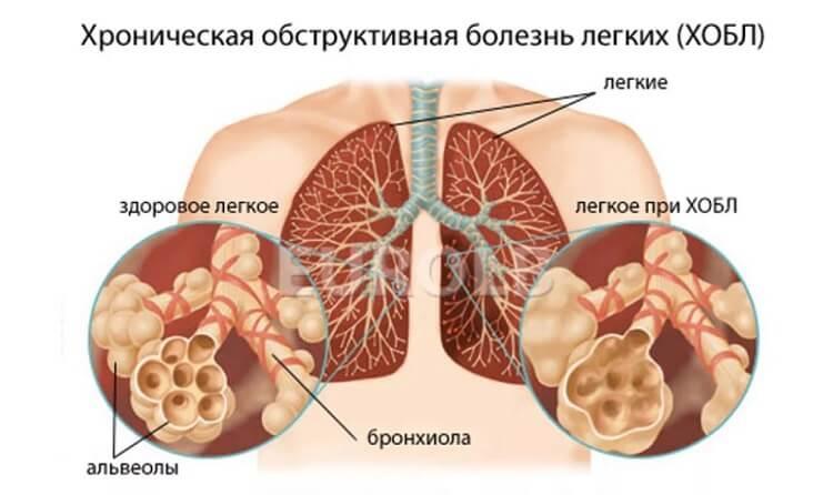 Хроническая обструктивная болезнь легких (ХОБЛ)