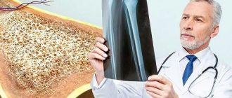 Остеопороз причины болезни и как лечить?