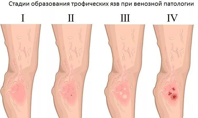 Язва голени - основные причины болезни
