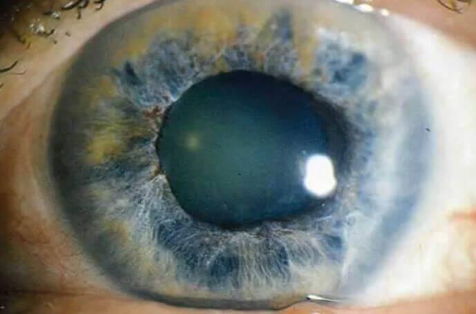 Глаукома или Острый приступ глаукомы